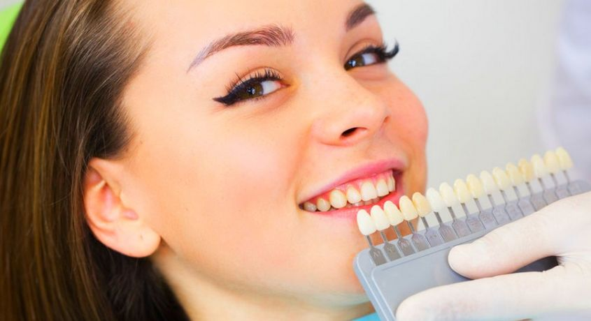 cosmetic dentistry direct and indirect veneers